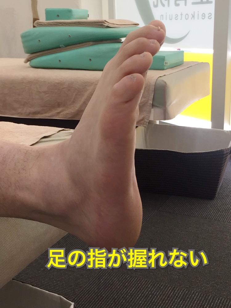 アキレス腱炎 足の指が握れない