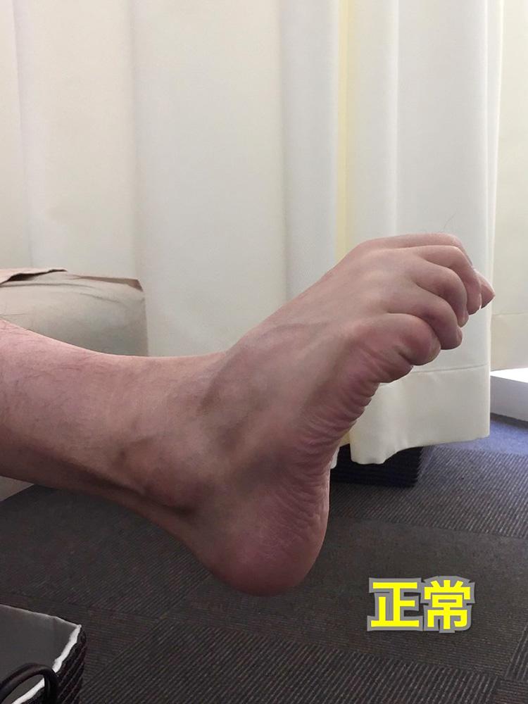 アキレス腱炎 足の指が握れる