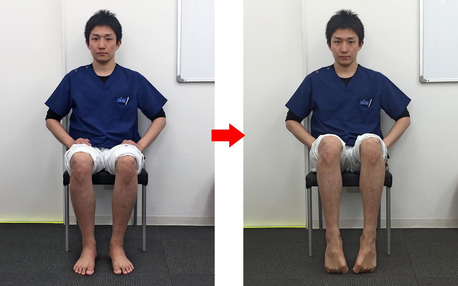 アキレス腱炎 浮指予防