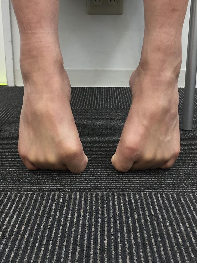 アキレス腱炎 浮指改善法